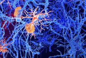 Image of microglia